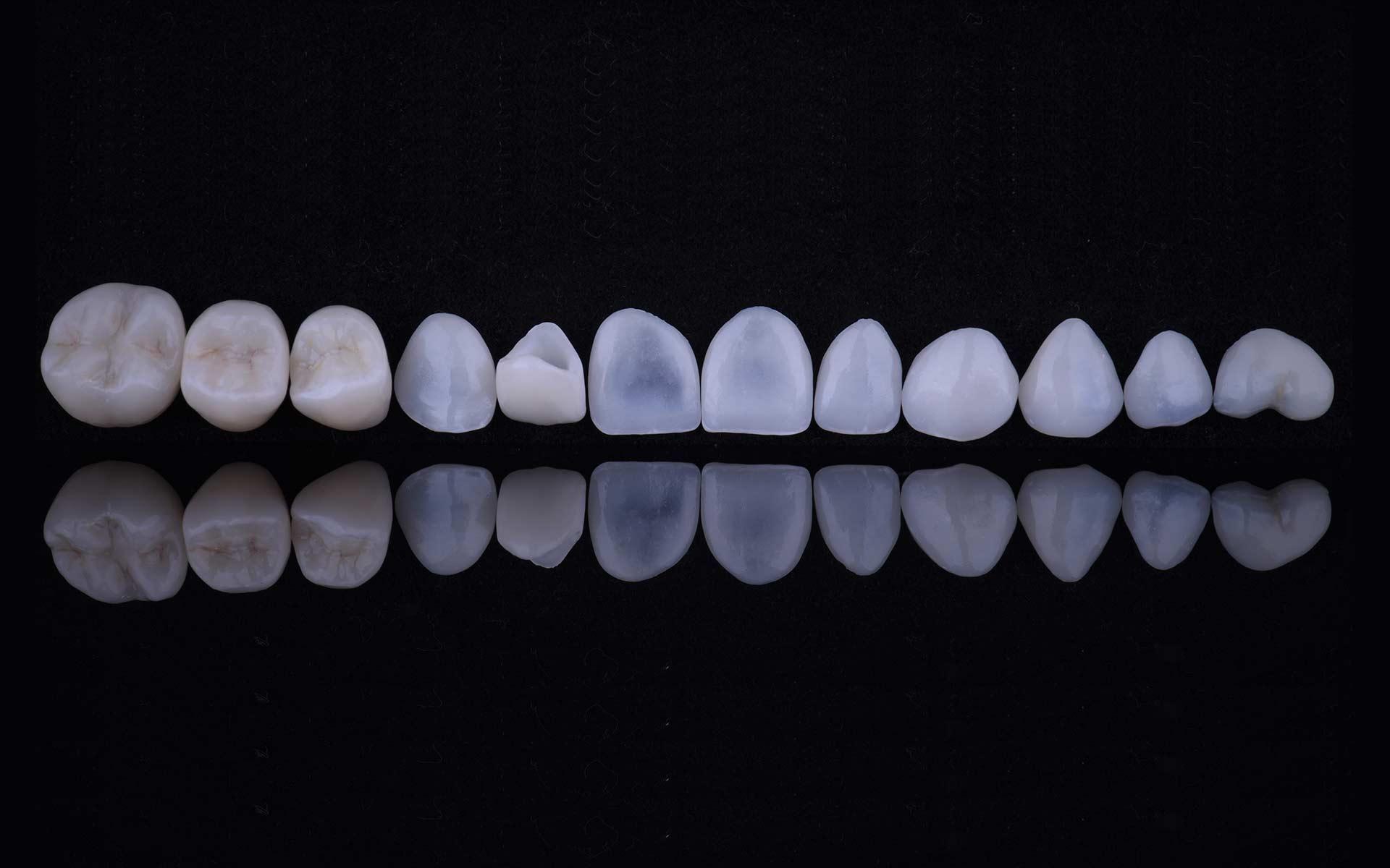 lorena-4-ceramicas-sup-1