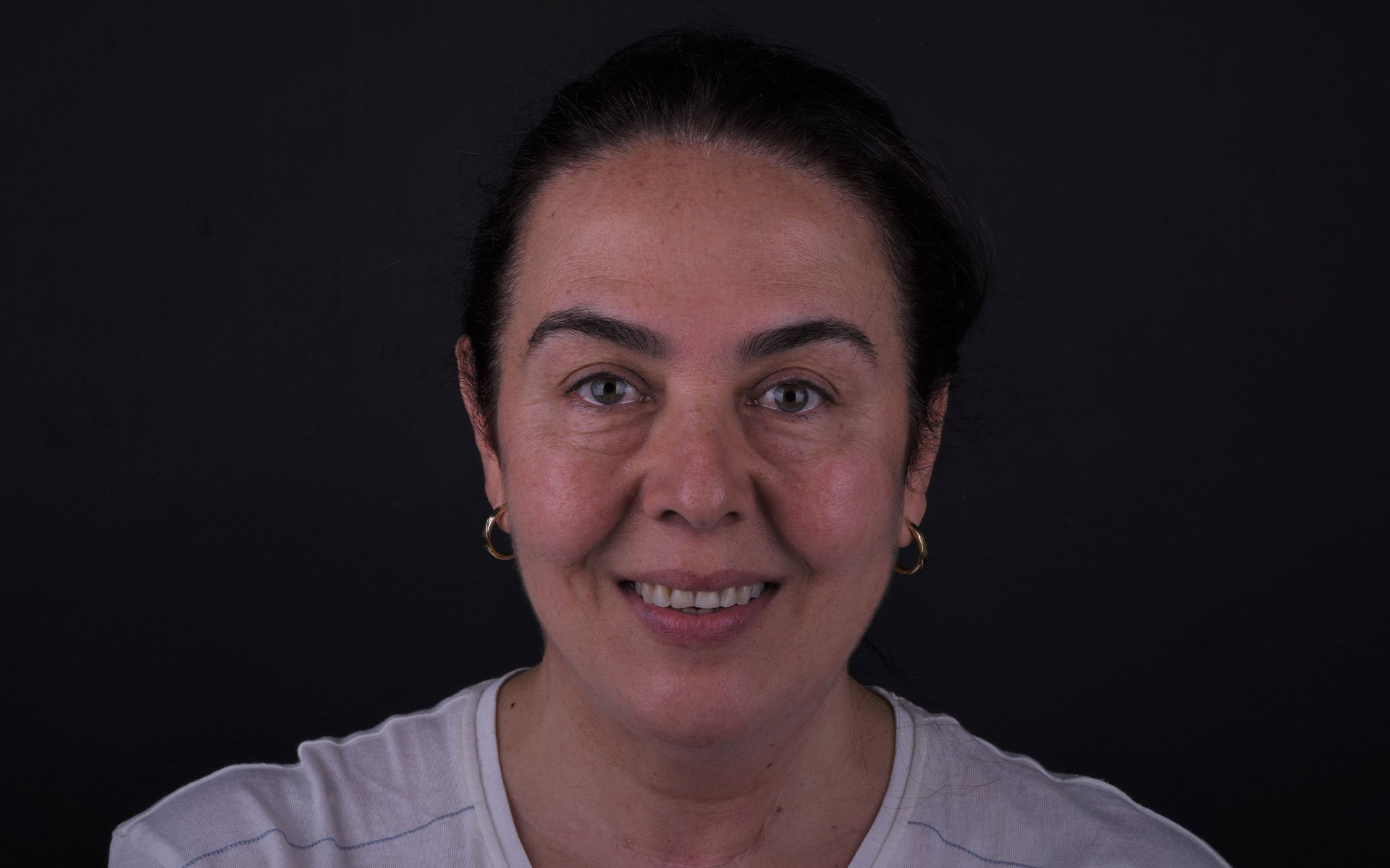 Samyria-Post-Ortodoncia-1