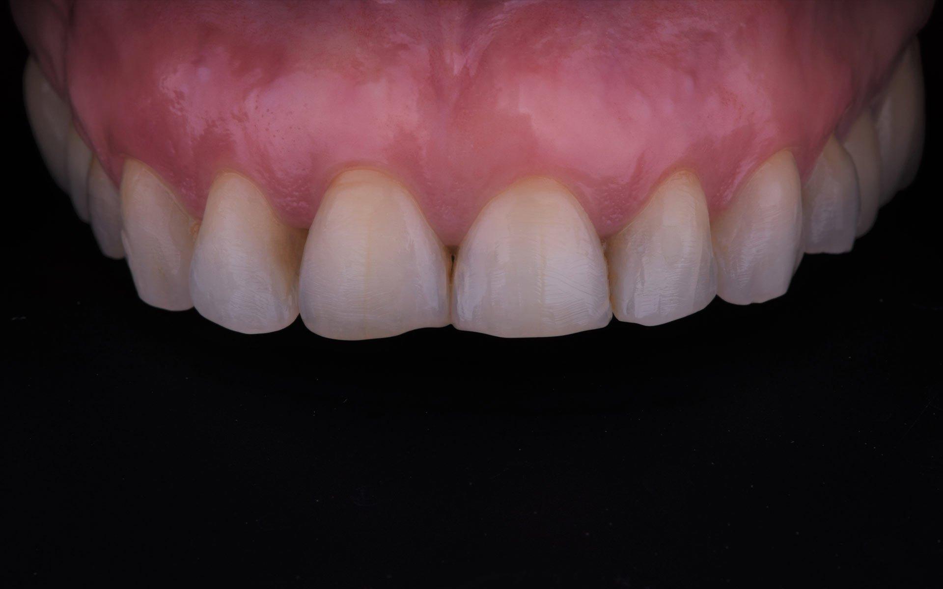 Samyria-Post-Ortodoncia-4